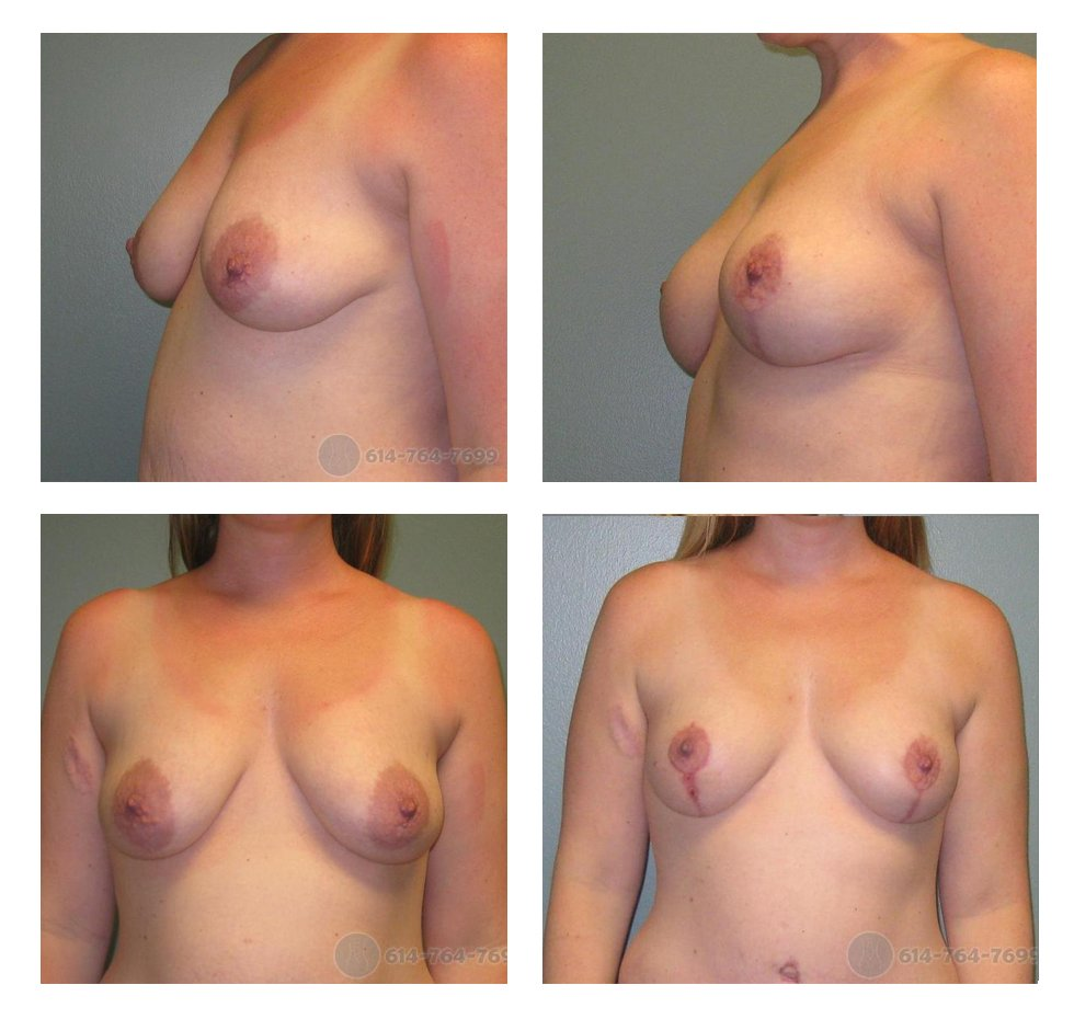 Before and 6 months after Vertical Mastopexy (Lollipop scar)