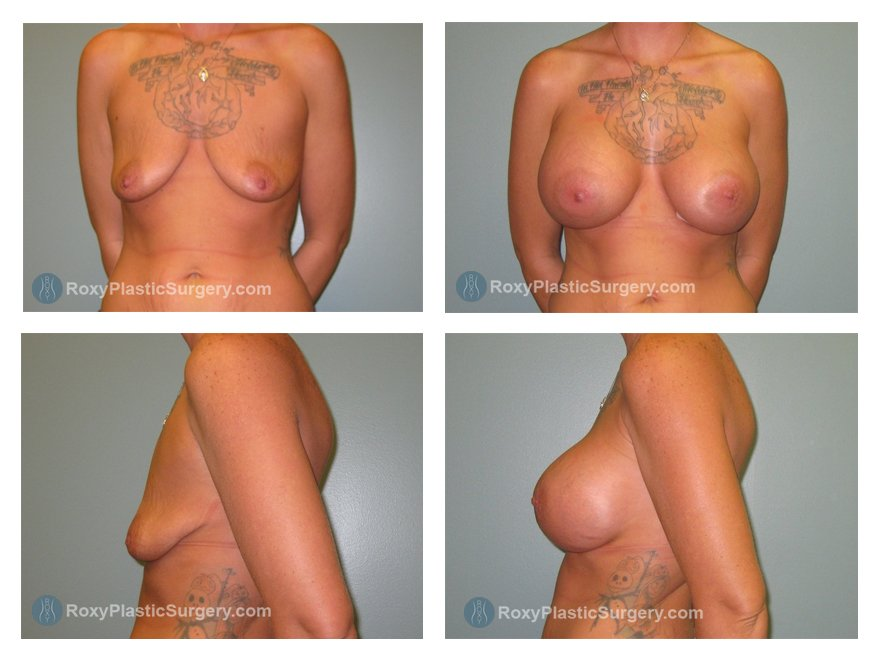 Age: 33 - Before Cup: 32 A - After Cup: 34 DD - Post Op Photo: 3 mo - Implant Size: 750 cc High Profile Saline - Weight: 130 lbs