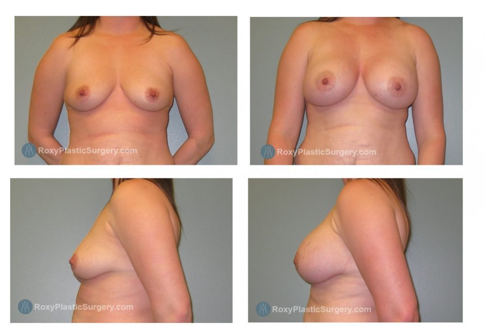 Age: 32 - Before Cup: 36 B - After Cup: 36 DD - Post Op Photo: 3 mo - Implant Size: R 430cc L 410cc Saline (400cc) - Weight: 155 lbs