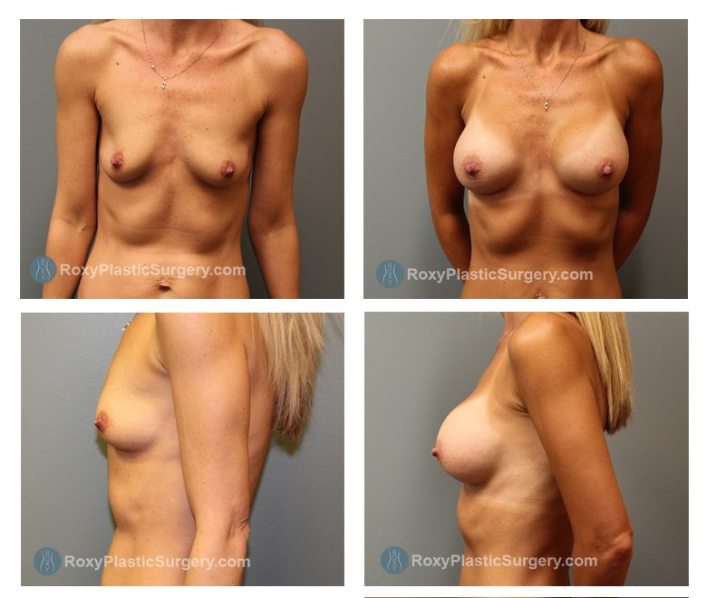 Age: 40 - Before Cup: 34 A - After Cup: 34 D - Post Op Photo: 3 mo - Implant Size: Silicone 350 cc - Weight: 112 lbs