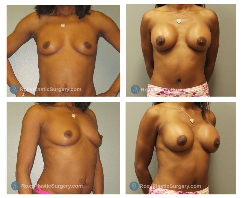 Age: 43 - Before Cup: 34 B - After Cup: 34 D - Post Op Photo: 10 wk - Implant Size: Silicone 400 cc Style 20 - Weight: 150 lbs