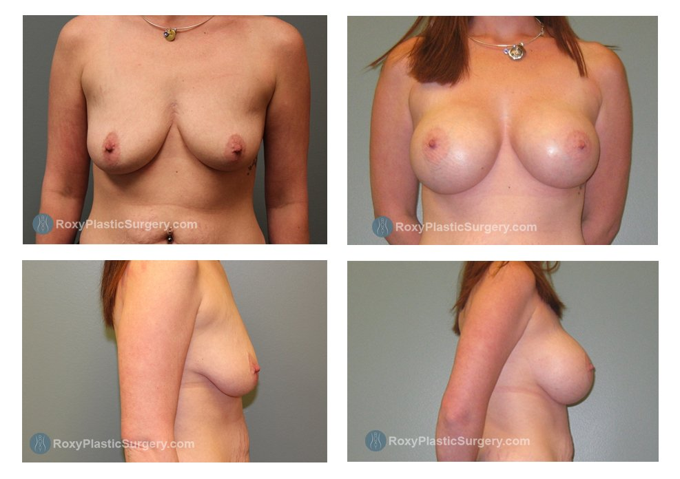 Age: 28 - Before Cup: 34 D - After Cup: 34 DD - Post Op Photo: 3 mo - Implant Size: Silicone 550 cc - Weight: 160 lbs