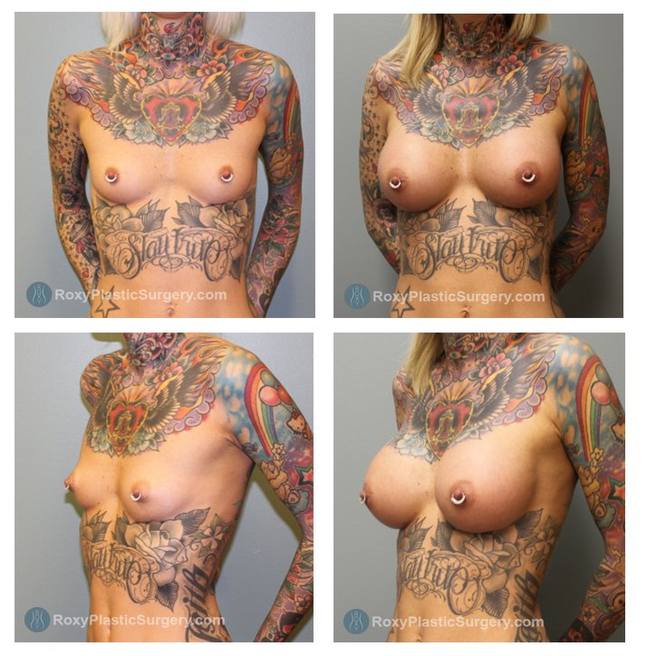 Age: 37 - Silicone Breast Augmentation