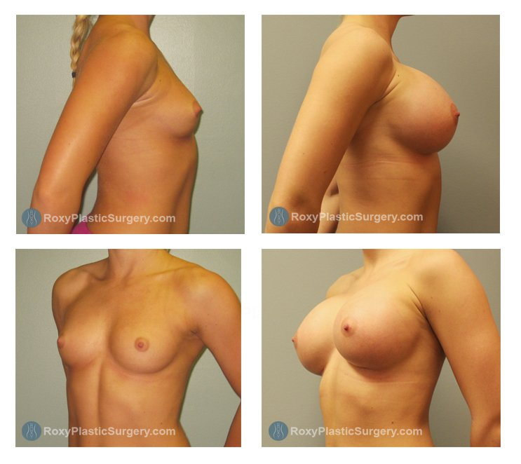 Age: 21 - Before Cup: 34 B - After Cup: 34 D - Post Op Photo: 3 mo - Implant Size: Silicone 650 cc - Height: 5'5″ Weight: 130 lbs