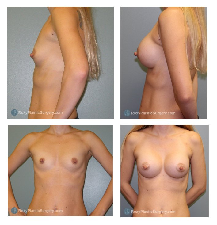 Silicone Breast Augmentation Before & After