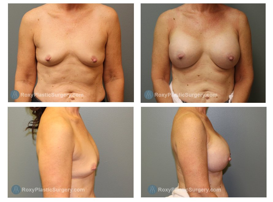 Age: 53 - Before Cup: 34 B - After Cup: 34 D - Post Op Photo: 6 mo - Implant Size: Silicone 450 ml - Weight: 116 lbs