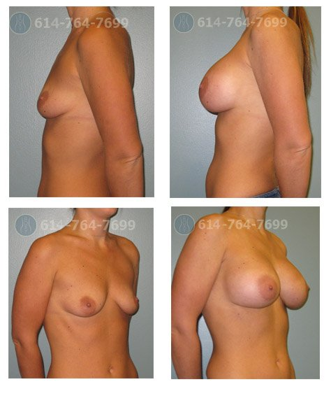Age: 33 - Before Cup: 34A - After Cup: 34C - Post Op Photo: 6 mo - Implant Size: 475 cc Silicone - Height/Weight: 5'2″/117 lbs
