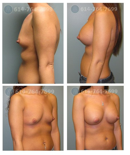 Age: 33 - Before Cup: 34A - After Cup: 34C - Post Op Photo: 1 year - Implant Size: 450 cc Silicone - Height/Weight: 5'4″/125 lbs