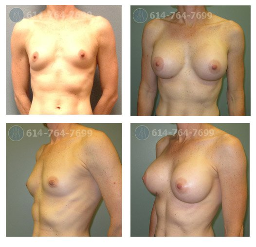 Age: 43 - Before Cup: 34C - After Cup: 34DD - Post Op Photo: 3 mo - Implant Size: 400 cc Silicone - Height/Weight: 5'7″/125 lbs