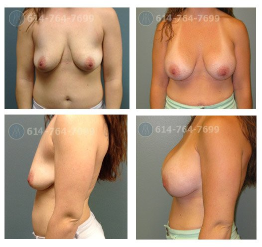 Age: 24 - Before Cup: 34B - After Cup: 34D - Post Op Photo: 3 mo - Implant Size: 600 cc Silicone - Height/Weight: 5'5″/160 lbs
