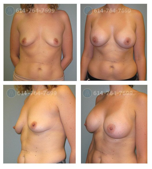 Age: 31 - Before Cup: 34B - After Cup: 34C - Post Op Photo:  3 months - Implant Size: 450 cc Silicone - Height/Weight: 5'4″/125 lbs
