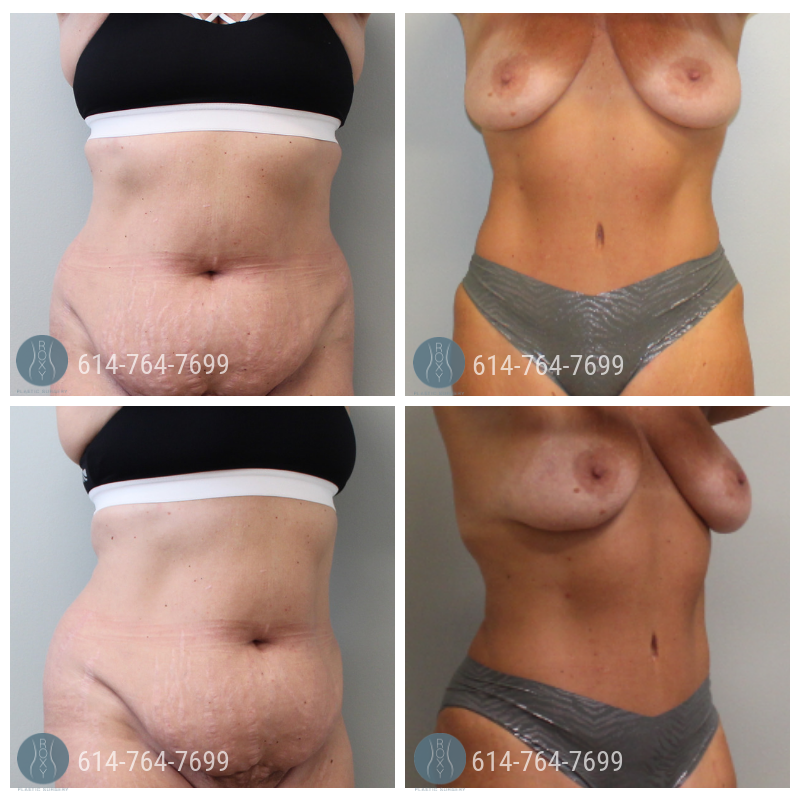 Post Op Photo: 6 mo Post Tummy Tuck and Liposuction of the Flanks