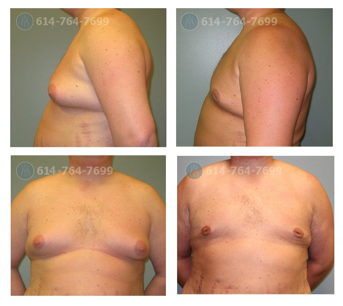 6 months after treatment of gynecomastia with gland excision and liposuction