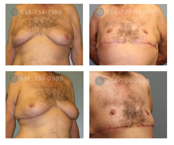 3 months after treatment of severe gynecomastia with gland and skin excision
