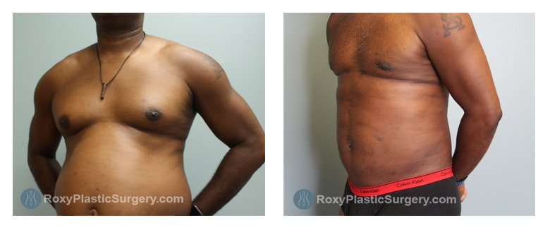 Roxy Plastic Surgery - Gynecomastia