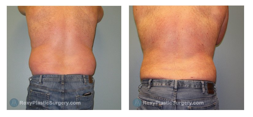 Pre - and Post-Op for Male Liposuction