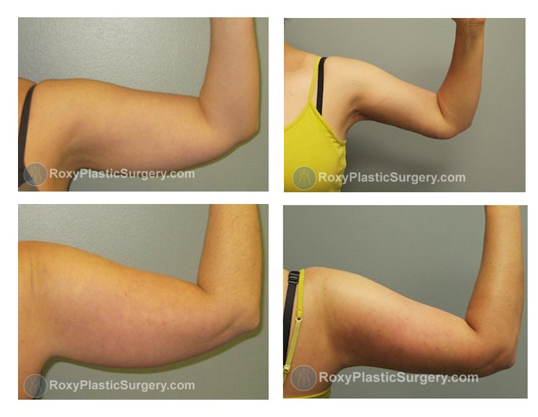 Pre and 3 months after liposuction of the arms and brachioplasty (arm lift)