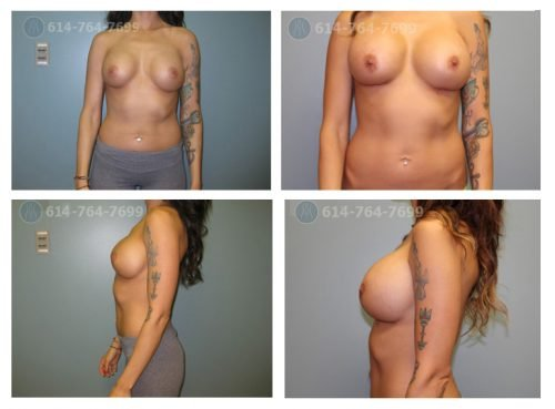 Age: 29 - Procedure: Breast Augmentation Revision - Post Op Photo: 6 wks - Implant Size: 750 cc High Profile Silicone