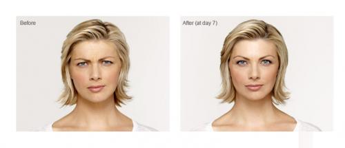 Roxy Plastic Surgery - Botox