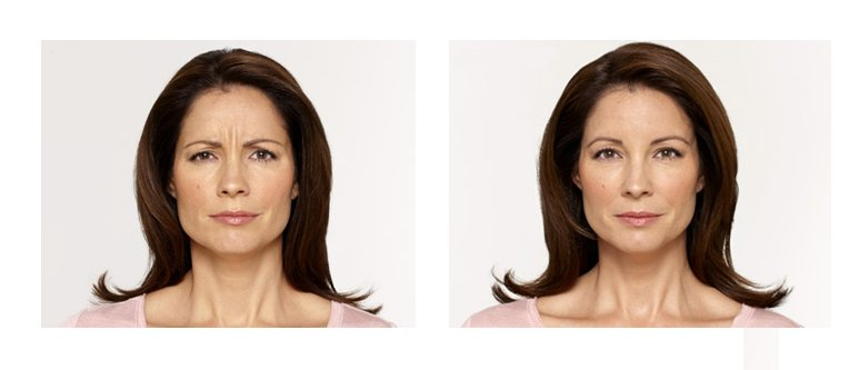 BOTOX Before and After in Columbus Ohio at ROXY Plastic Surgery