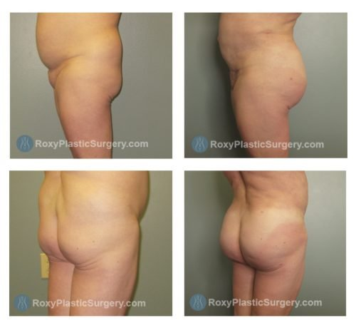 Brazilian Buttock Lift -  Liposuction of the Abdomen & Flanks  - Pre and 5 Months Post Op  - Fat Grafted: 750 cc per sid