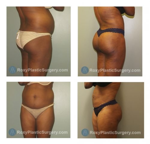 Brazilian Buttock Lift - Liposuction of the Abdomen & Flanks  - Pre and 7 Weeks Post Op  - Fat Grafted: Right Buttock: 650 cc, Left buttock 600 cc
