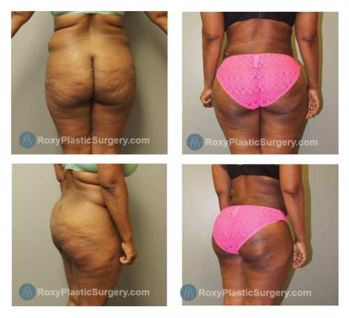 Brazilian Buttock Lift - Liposuction of the Upper & Lower Back  - Pre and 7 weeks Post Op  - Fat Grafted: 750 cc per side