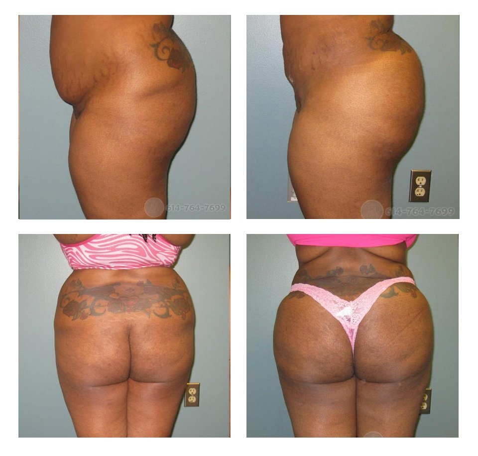 Brazilian Butt Lift (Fat Grafting) - pre and 2 months post op  - Liposuction from the abdomen, flanks (love handles) and lower back  - Fat grafting: 850 cc per side