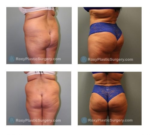 Brazilian Buttock Lift (Fat Grafting) - Liposuction from the Abdomen & Flanks  - Pre and 6 Months Post Op  - Fat Grafted: 700 cc each side