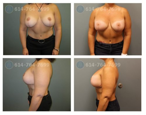 Age: 47 - Procedure: Breast Augmentation and Mastopexy Revision - Post Op Photo: 3 Months  Implant Size: 650 cc High Profile Silicone