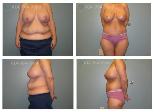 Age: 30 who lost 150lbs - Procedure: Breast Augmentation Revision  - Post Op Photo: 9 Months  - Implant Size: 600 cc High Profile Silicone