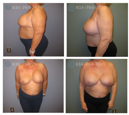Age: 69  - Procedure: Breast Augmentation Revision - Post Op Photo: 5 Months  - Implant Size: 650 cc  High Profile Silicone