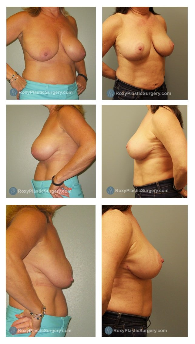 Age: 54 - Procedure: Breast Augmentation Revision and Mastopexy - Post Op Photo: 6 months  - Implant Size: Moderate Plus 450cc Saline