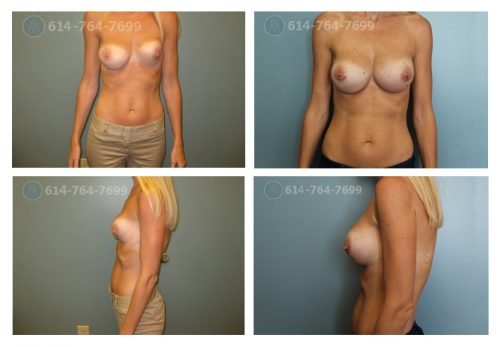 Age: 35 - Procedure: Breast Augmentation Revision - Post Op Photo: 3 Months - Implant Size: 450 cc Silicone