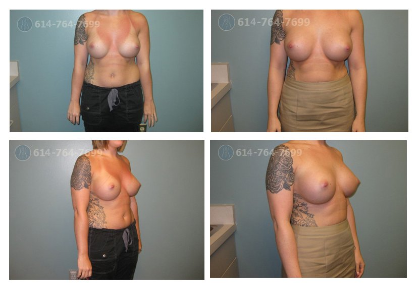 Age: 26 - Procedure: Breast Augmentation Revision - Post Op Photo: 3 Months - Implant Size: 500 cc High Profile Silicone