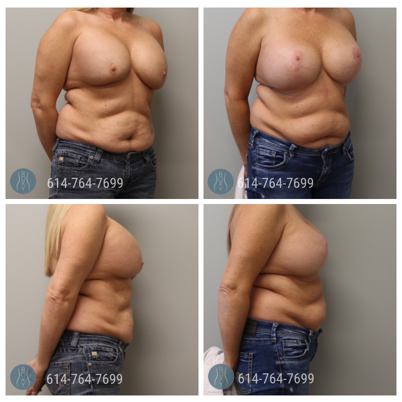 Age: 49 - Procedure: Breast Augmentation Revision with Right Capsulectomy and Bilateral Mastopexy - Implant Size: 700 cc Saline Implants