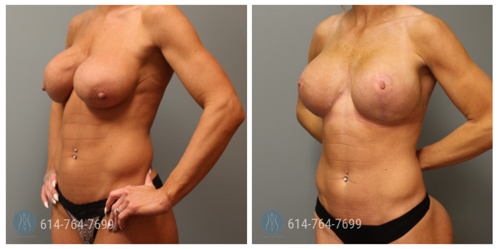 Age: 39 - Procedure: Breast Augmentation Revision with Strattice Sling and Mastopexy - Implant Size: Submuscular 800 cc Silicone Implants