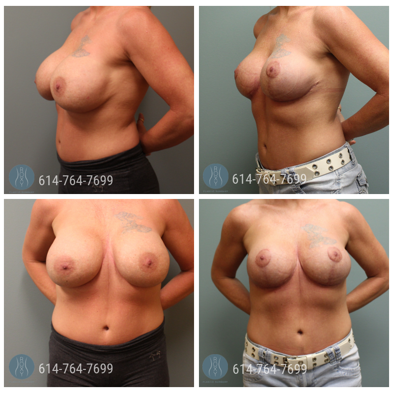 Age: 44 - Procedure: Breast Augmentation Revision with Breast Lift - Implant Size: 730 cc Saline Implants, Exchanged to 380 cc Saline Implants