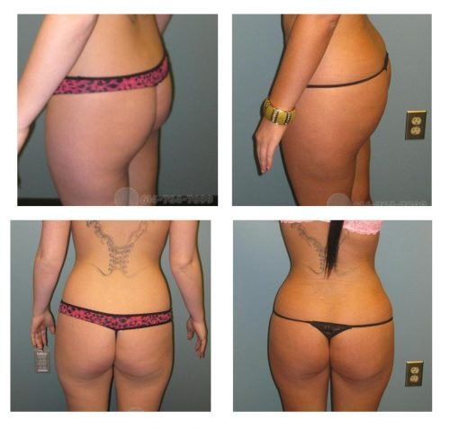 Brazilian Buttock Lift (Fat Grafting) - Pre and 3 months post op - Liposuction from abdomen and flanks (love handles) - Fat grafting: 600 cc to the left, 750 cc to the right