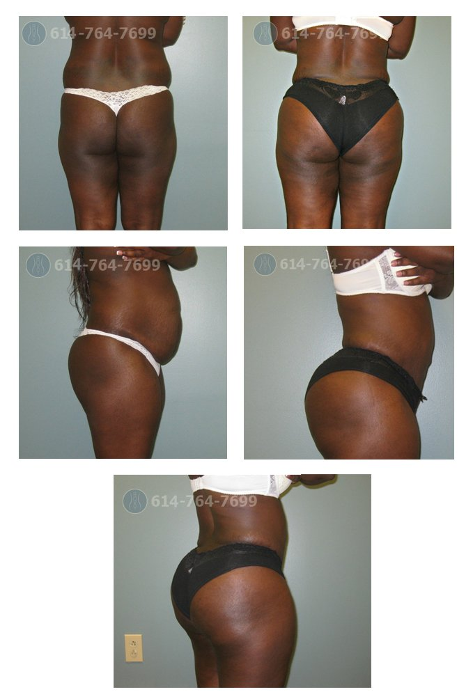 Brazilian Butt Lift (Fat grafting) -  Pre and 5 months post op  - Fat grafting: 890 cc per side