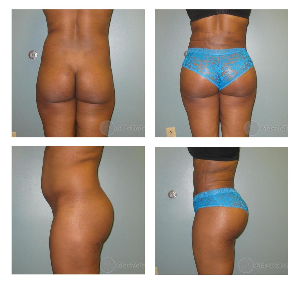 Before and 2 weeks after Brazilian Buttock Lift  - 900 cc fat injected into each side