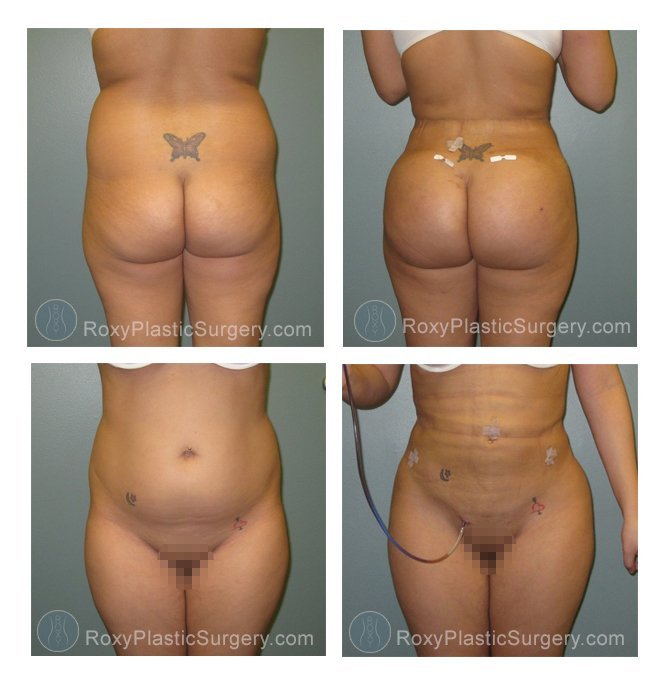 Brazilian Buttock Lift (Fat Grafting) - Pre and 6 weeks post op  - Liposuction: Abdomen and Flanks  - Fat grafting: 600 cc fat grafting to each side