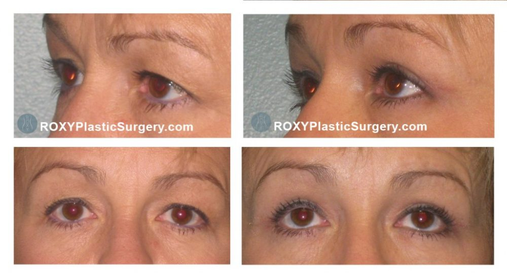 Pre and 5 weeks after upper blepharoplasty