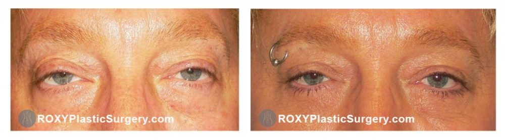 Pre and 4 months post upper & lower blepharoplasty