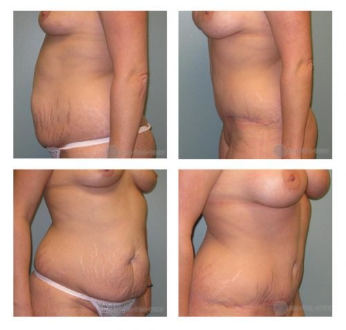 Before and 6 months after Abdominoplasty