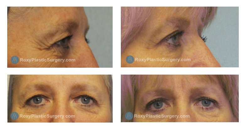 Pre and 4 months Post Upper Blepharoplasty