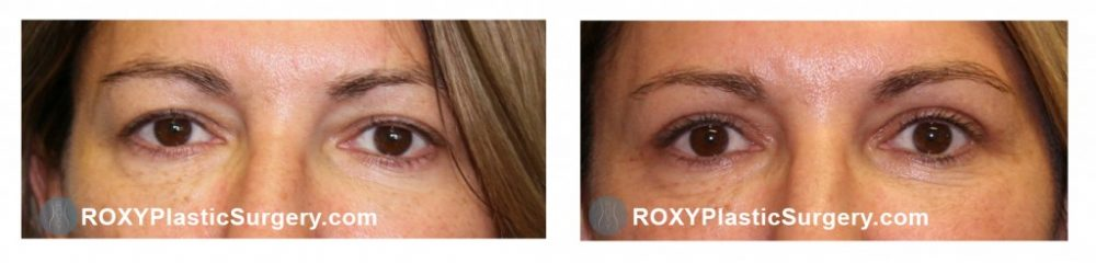 Pre and 6 weeks post upper blepharoplasty