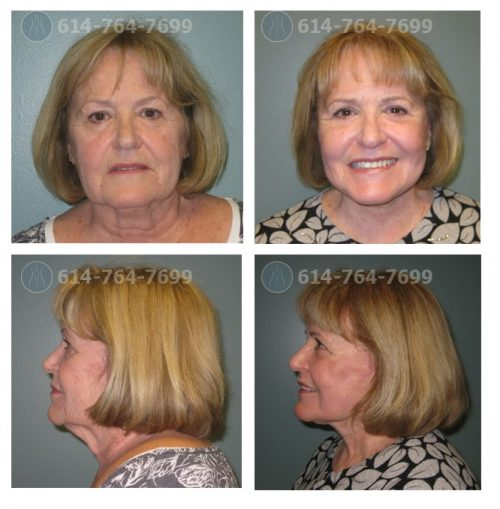 Pre & 3 Month Post Op – Facelift, Upper and Lower Blepharoplasty