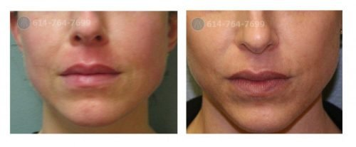 Before and After ROXY Pout Lip Augmentation