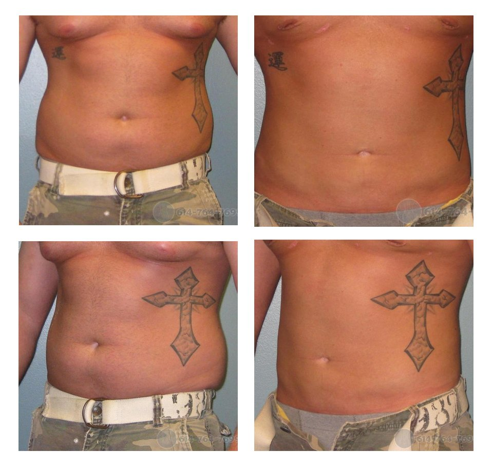 Liposuction Abdomen and Flanks (Love Handles) – Male